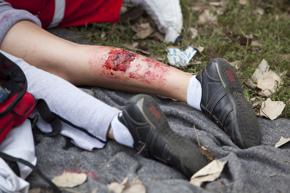 The Physical and Emotional Impact of Burn Injuries